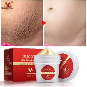 Skin Cream For Stretch Mark Scar Removal